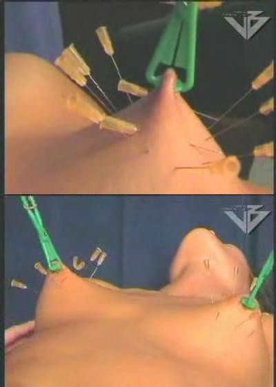 Acupuncture for boobs